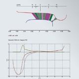 车轮钢轨分析软件